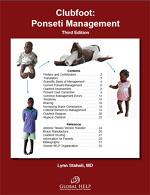 Global HELP Ponseti