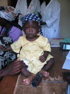 treated clubfoot Uganda