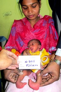 Siam, 15 days old - born with clubfoot and awaiting the start of Ponseti treatment.