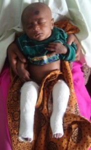 Polash, in Bangladesh, in his Ponseti casts