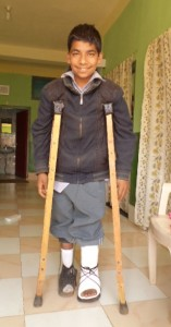 Ramesh, in Nepal, following surgical correction on both clubfeet